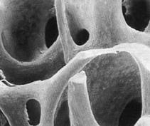 Костные имплантанты из ротанга прошли успешные испытания